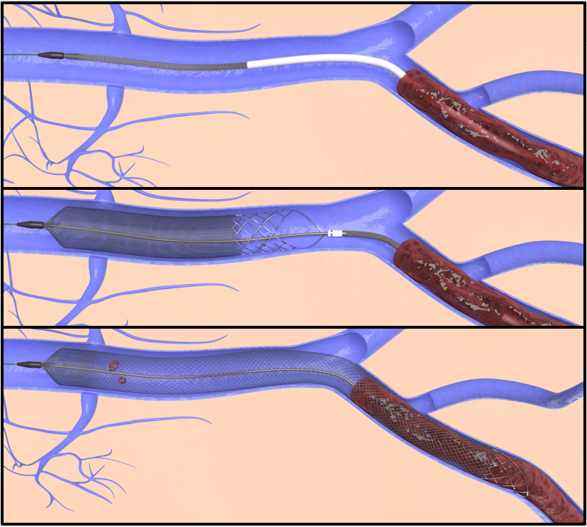 Venous Clot Extraction